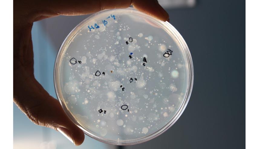 Identifican bacterias beneficiosas en el compostaje de alperujo